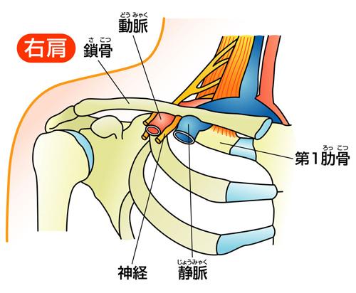 「胸郭出口症候群」の画像検索結果